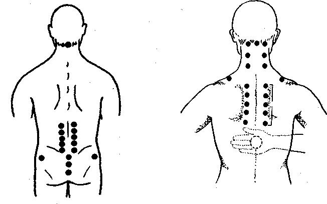 Точки тела для лечения простаты